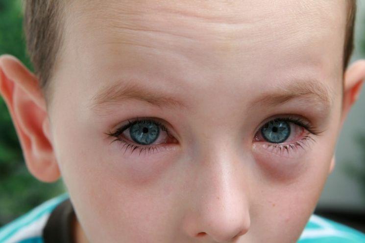 Аллергия под глазами фото