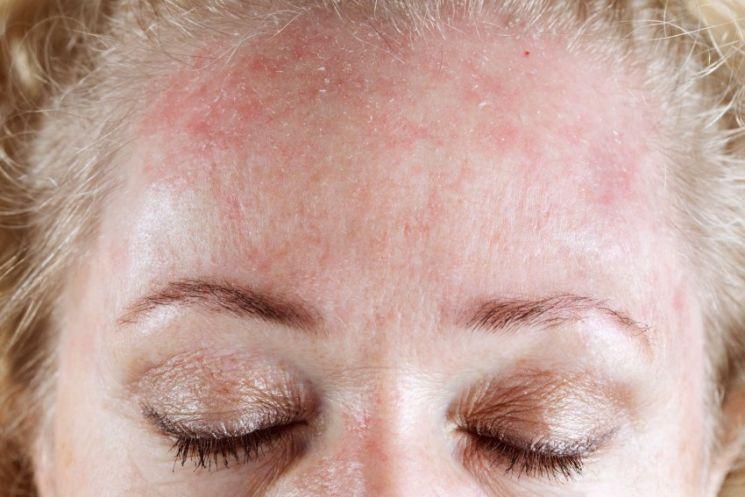 Аллергия краснота по всему телу