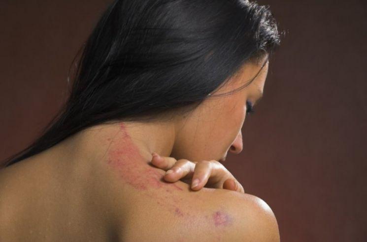 Аллергия на коже - 140 фото и видео высыпаний и советы по лечению
