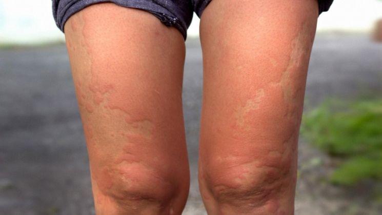 Аллергия фото у взрослых фото симптомы и лечение на ногах thumbnail