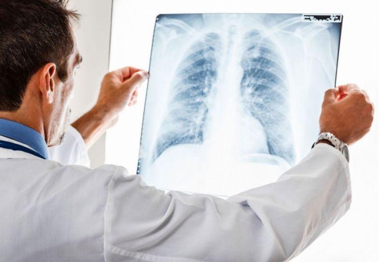 Бронхиальная астма с картинками thumbnail
