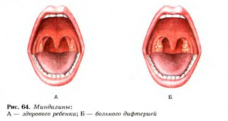 дифтерия