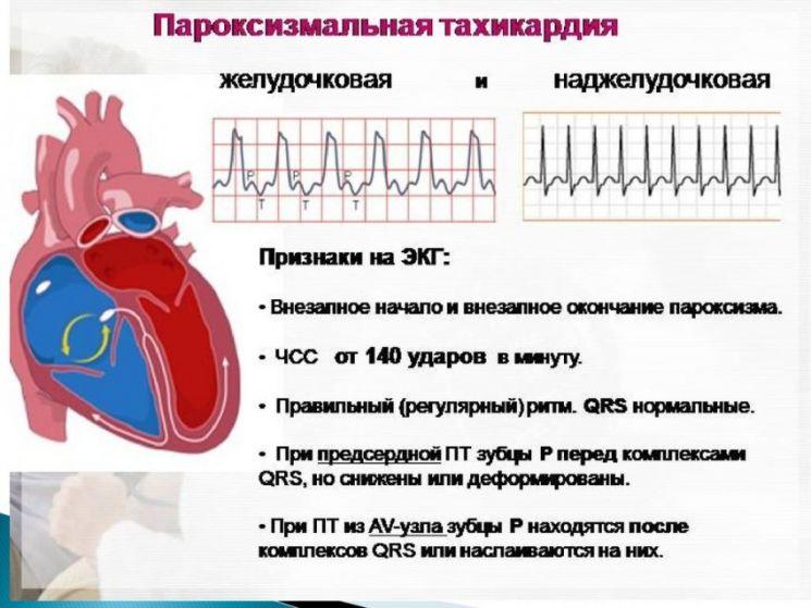 Низкая частота чего ударов сердца является признаком