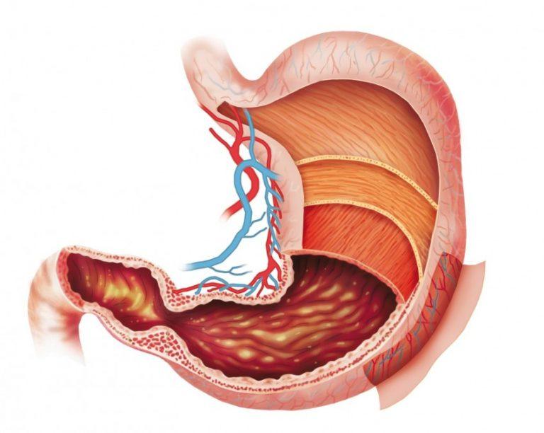Гипертензия в желудке: лечение, причины, симптомы