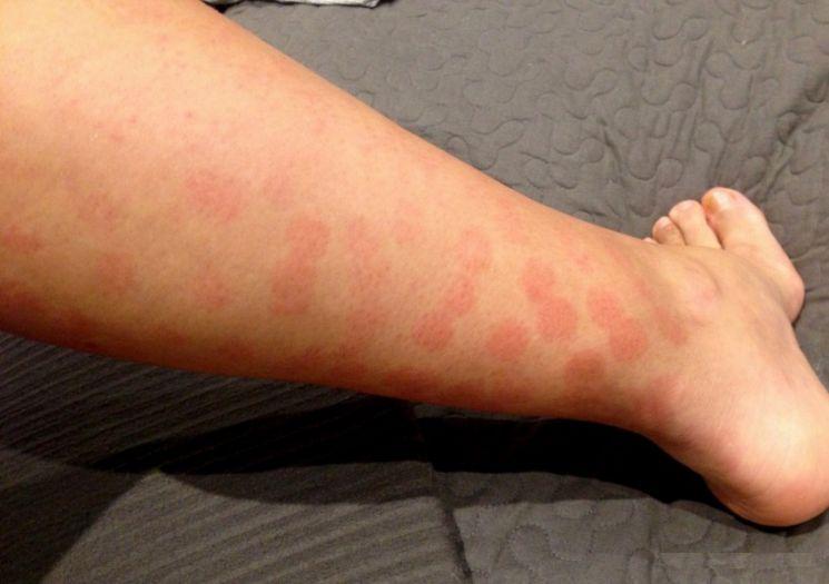Аллергия на коже отек фото