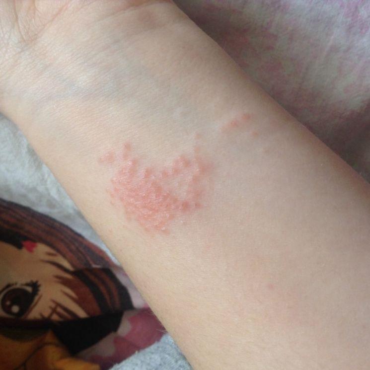 Аллергия высыпания на коже рук