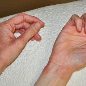 Аллергия на руках — причины появления аллергии и обзор самых действенных препаратов для лечения (105 фото)