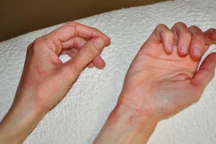 Личный опыт: аллергия на солнце